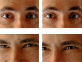 мимические морщины инъекции ботокса мужчины фото до и после
